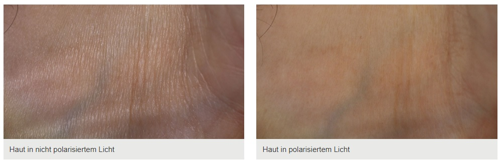 Polarisationsfilter in der Kosmetik