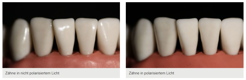 Polarisationsfilter in der Zahnmedizin